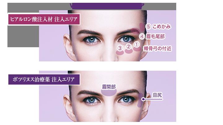 VST®-Shapeにおける注入エリアと注入量の目安