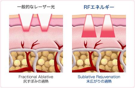 RFを点状に照射することで皮膚表面のダメージを最小限に抑えられること。そのため、ダウンタイムが大幅に軽減され、皮膚を引き締める熱エネルギーは肌の内部に広がっていきます。この熱エネルギーによって、皮膚のコラーゲンが多く生成されるようになります。
