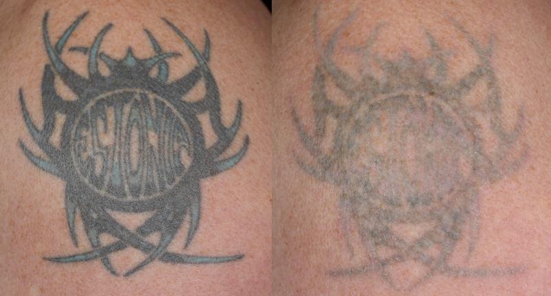 タトゥーの今まで消えにくかった色(青、緑)を、今までのレーザーに比べてとても効果的に薄くします。