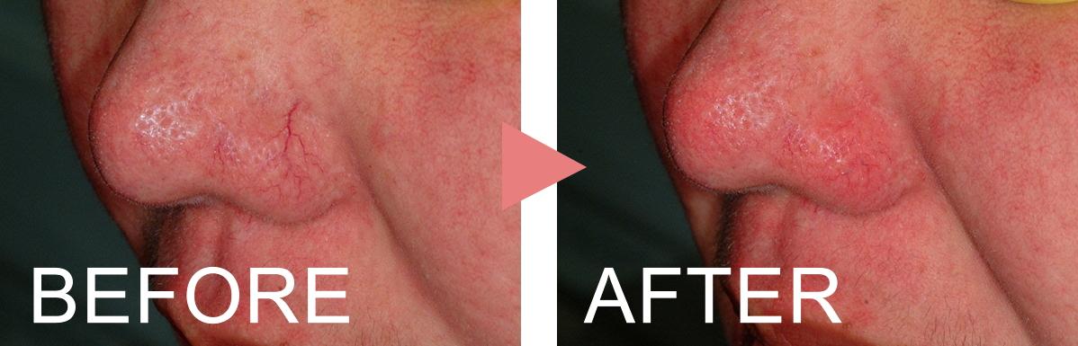 鼻の周りの毛細血管拡張 施術前・施術後