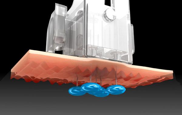 水光治療(注射)注入法